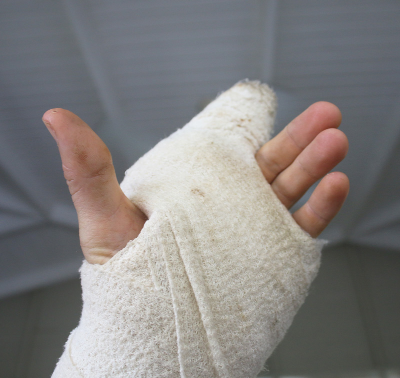 Cast-on-hand